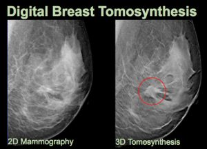 digital-breast-tomosynthesi